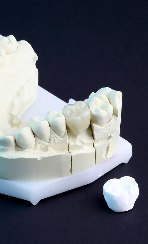 Laboratoire dentaire cire usinée Leroux prothesiste dentaire