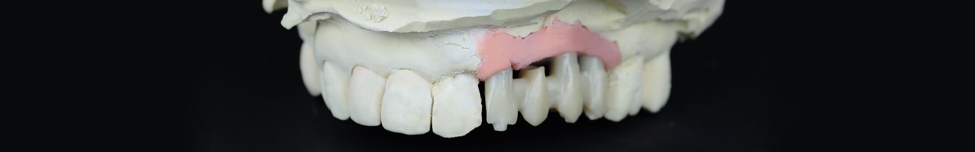 Implantologie dentaire Leroux