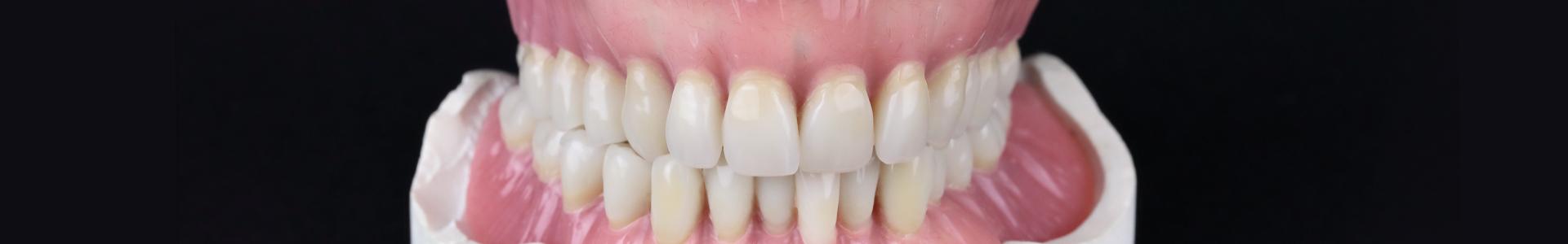 Prothèses adjointes Leroux Prothésiste dentaire